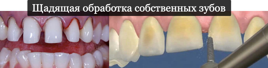 Щадящая обработка собственных зубов